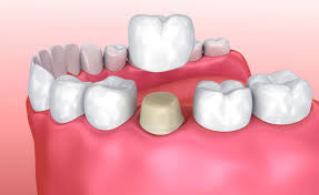 Dental crowns N Raleigh NC